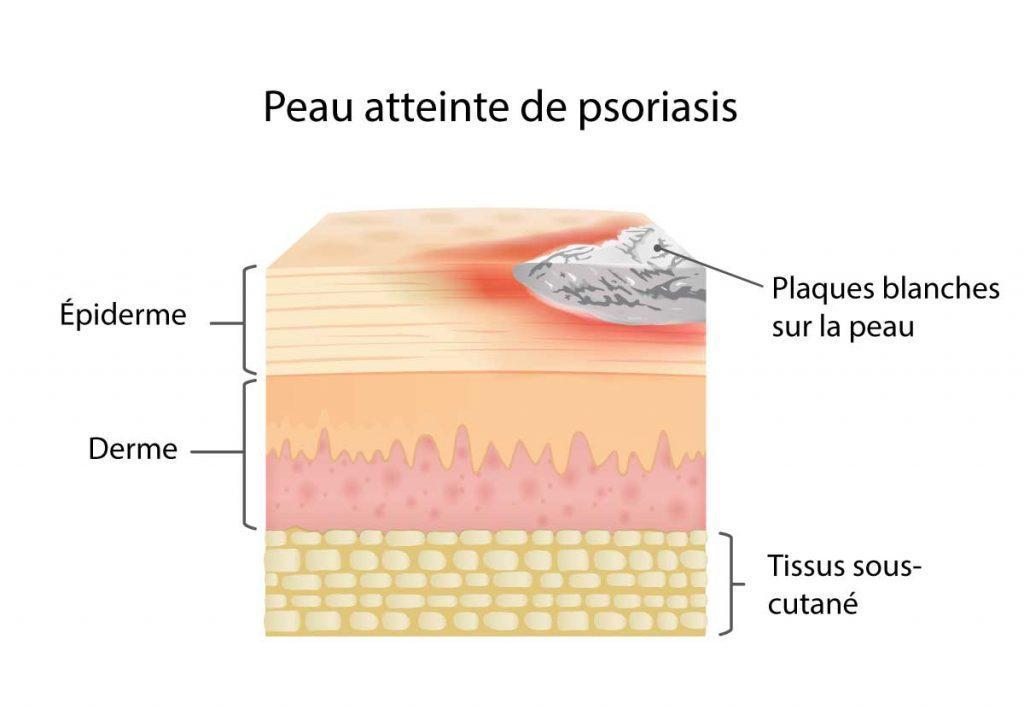 peau atteinte de psoriasis